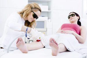 Laser epilazione per la medicina estetica